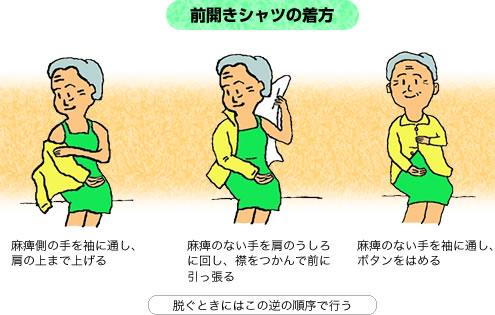 イラスト:前開きシャツの着方麻痺側の手を袖に通し、肩の上まで上げる、麻痺のない手を肩の後ろに回し、襟をつかんで前に引っ張る、麻痺のない手を袖に通し、ボタンをはめる、脱ぐときはこの逆の手順で行う
